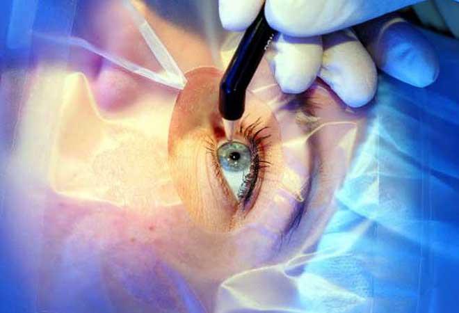 جراحی آب مروارید چشم روش های فیکو و لیزر