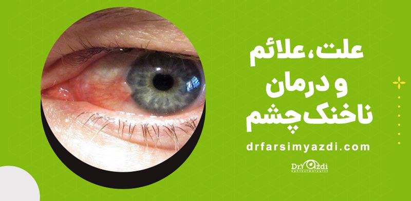 علت، علائم و درمان ناخنک چشم چیه؟